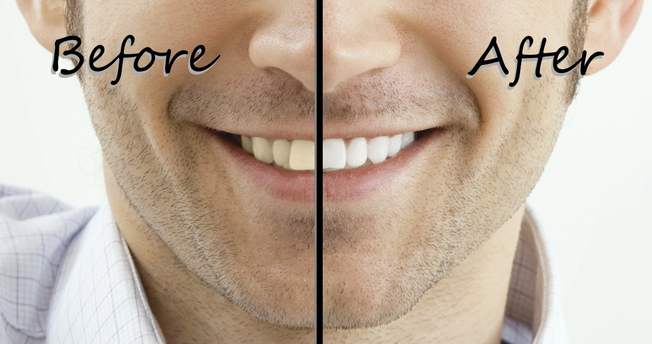Teeth Whitening Gel-
